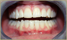 Straighter teeth after