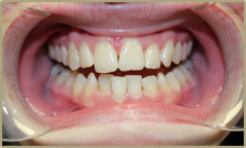 Straighter teeth before