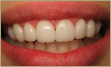 Custom Smile Design Veneers After