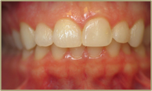 Custom Smile Design Veneers Before